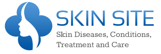 Skin Site