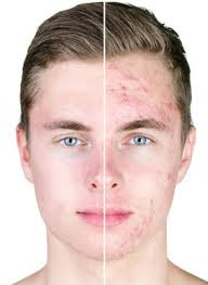 accutane effects on males